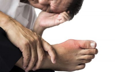 WHAT'S GOUT ABOUT???